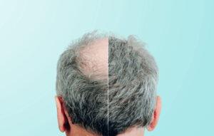 مراقبت های پس از کاشت مو