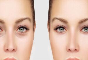 جراحی پلک یا بلفاروپلاستی چیست؟